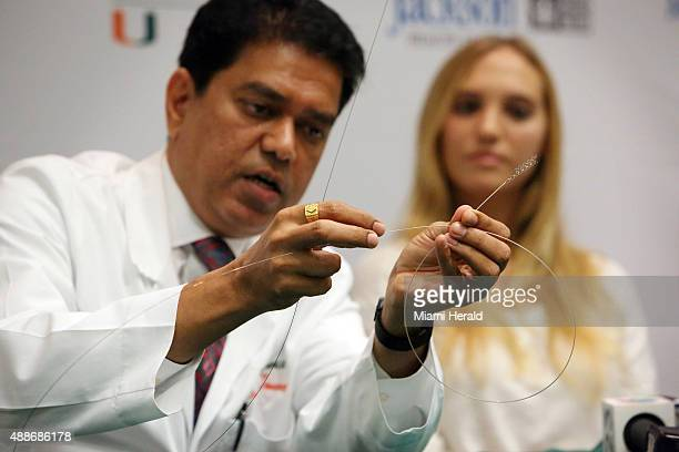 Dileep R Yavagal MD Chief of UHealth Interventional Neurology demonstrates how using a stent retrieval device called Solitaire he was able to grab a...