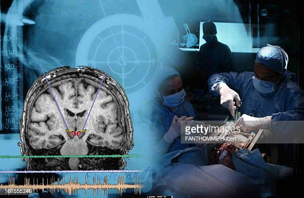 operation with stereotactic placement of electrodes in the brain by Professor Philippe Cornu assists the neurosurgeon Soledad Navarro a patient with...