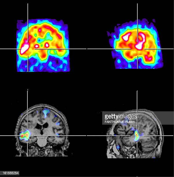 Diseases Of The Brain The service of Professor Baulac on epilepsy in hospital PitieSalpetriere the HP AP PARIS searching for suspect areas with...