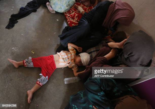 TOPSHOT A displaced Iraqi child from Tal Afar lies at a house in AlAyadieh village on August 29 where he got injured as his family was seeking...