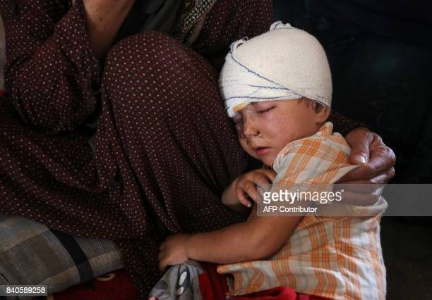 A displaced Iraqi child from Tal Afar sits at a house in AlAyadieh village on August 29 where he got injured as his family was seeking shelter during...
