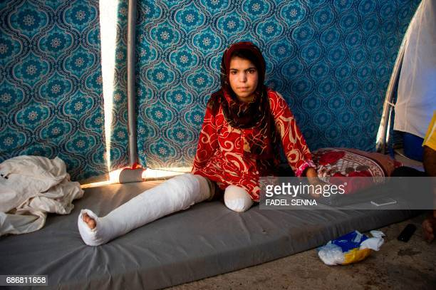 TOPSHOT A displaced Iraqi girl who lost her limb as well as members of her immediate family in fighing between government forces and Islamic State...