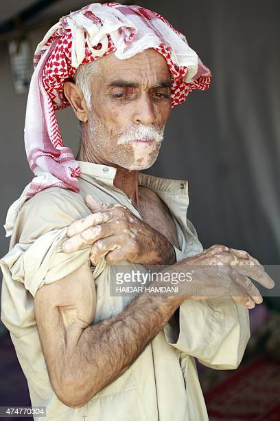 A displaced Iraqi man who was injured by Islamic State group fighters prior to fleeing Anbar province due to the ongoing conflict between...