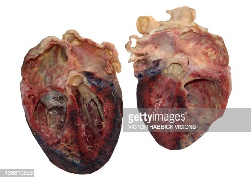 dissected human heart stock photo | getty images, Human Body