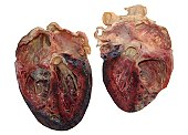 Dissected human heart