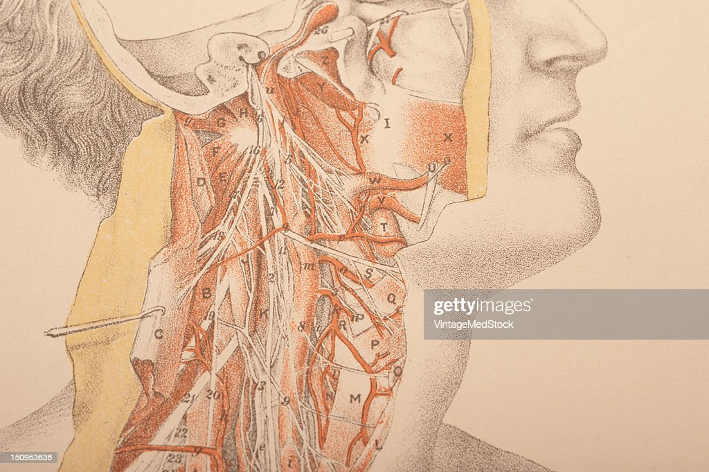 Dissection of the head face and neck showing internal carotid assending pharyngeal arteries and cranial nerves distributed through the neck 1882 From...