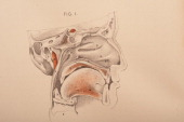 Dissection of the nasal cavity sinus cavity upper palette teeth tongue skull and larynx 1882 From 'Illustrations of Dissections in a Series of...