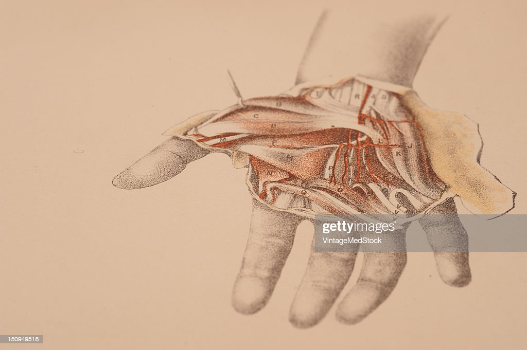 Dissection of the palm of the hand needed to lay bare the superficial and deep muscles blood vessels and nerves 1882 From 'Illustrations of...