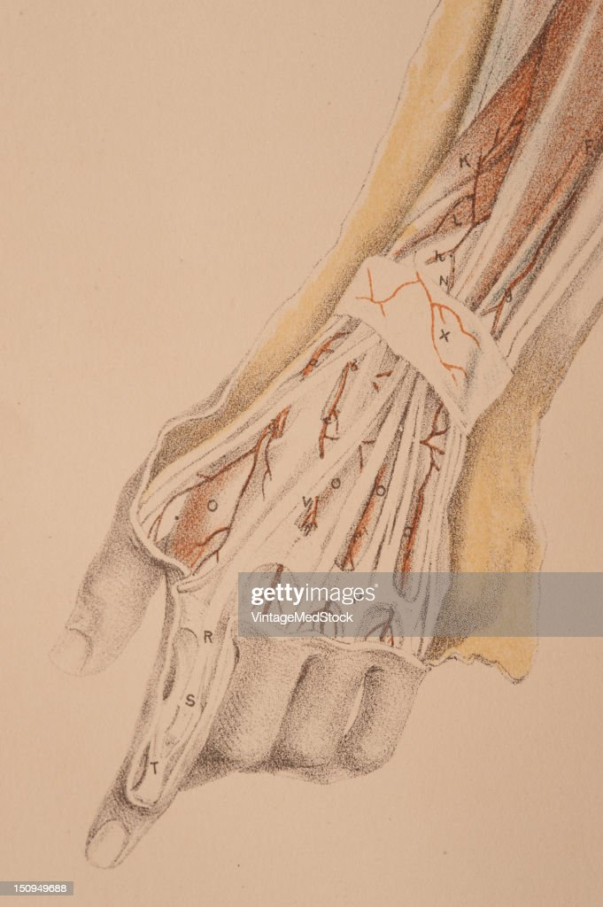 Dissection of the superficial muscles and vessels of the wrist and hand is illustrated 1882 From 'Illustrations of Dissections in a Series of...