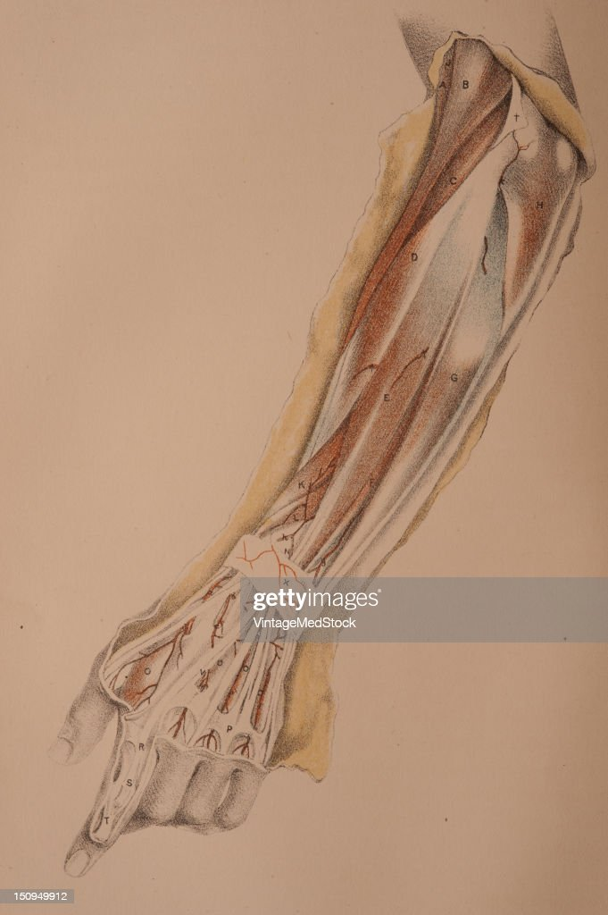 Dissection of the superficial muscles and vessels on the back of the forearm and hand is illustrated 1882 From 'Illustrations of Dissections in a...