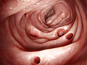 The disease  diverticulitis results of the inflammation of one of these diverticula. The most common sympton is abdominal pain.