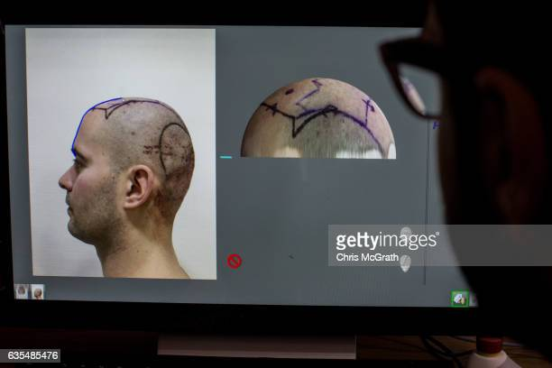 A doctor adjusts measurements for a robotic hair transplant machine before starting a procedure on a patient at the luxury Esteworld Clinic on...