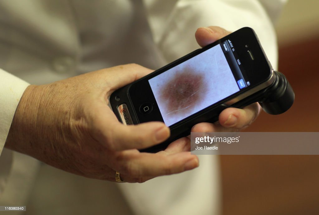 Doctor Antonella Tosti, Dermatologist University of Miami School of Medicine, displays an image on her iphone of a mark on the skin of Michael Casa Nova, 12, as she uses it as a dermatoscope while examinging him for symptoms of skin cancer due to sun exposure on June 15, 2011 in Miami, Florida. The federal Food and Drug Administration announced that sunscreen manufacturers are to change the labels on their products to prohibit the use of certain marketing terms. The new rules are meant to help clear up confusion about the meaning of 'sun protection factor,' or SPF, and other terms like 'waterproof.'