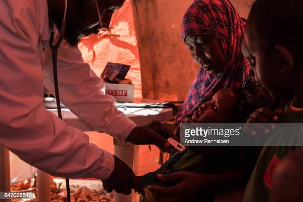 A doctor checks on a young girl at a government run clinic inside an IDP camp on February 24 2017 in Karin Sarmayo Somalia Brief rains brought an...