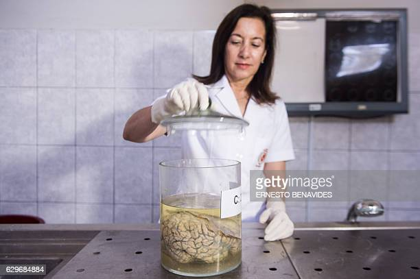 Doctor Diana Rivas opens a jar containing a human brain immersed in formaldehyde at the 'Museum of Neuropathology' in Lima on November 16 2016 The...