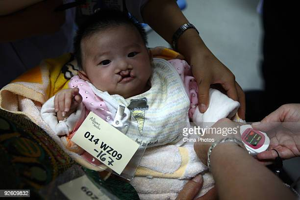 A doctor examines a child suffering from a cleft lip and palate who is from Cangnan County Orphanage at the Wenzhou Medical College during 'Wenzhou...