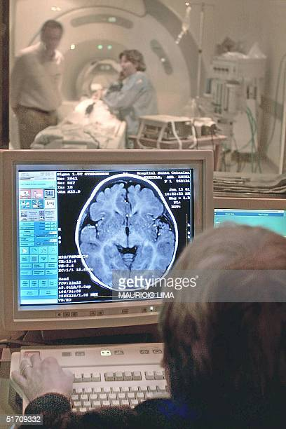 A doctor examines the results of a patient's MRI in Sao Pauol Brazil 22 November 2001 Un especialista en resonancia magnetica nuclear del Hospital...