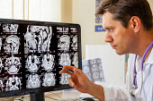 Doctor examining an MRI scan of the Brain on Monitior