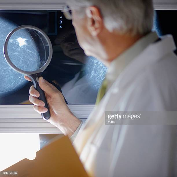 Doctor Examining Breast X-Ray