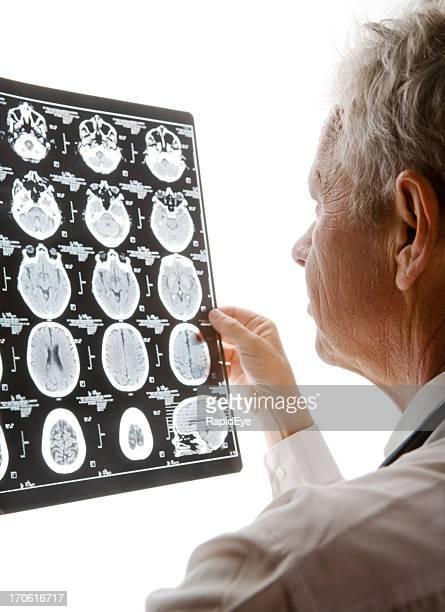 Doctor examining CAT scan