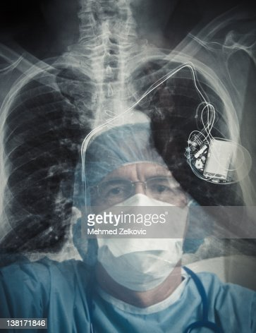 Doctor examining chest x-ray and pacemaker
