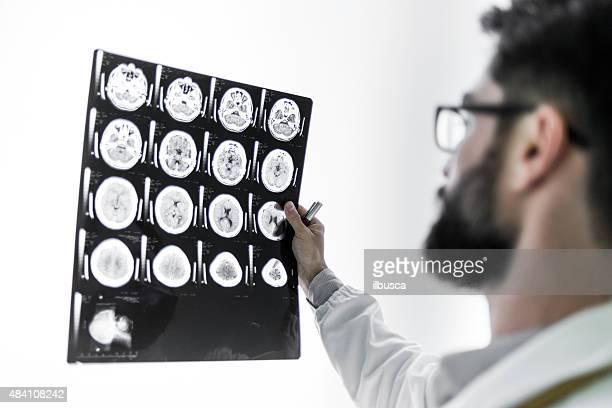Doctor examining MRI scan
