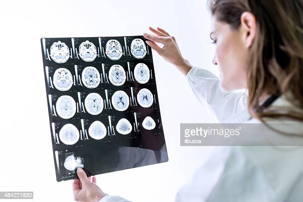 Médico examinar la MRI