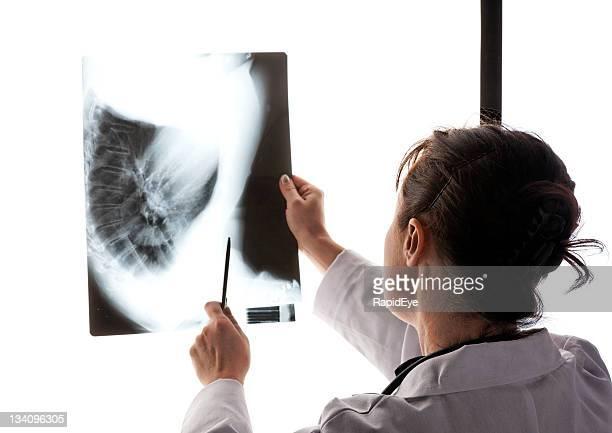 Médecin examiner X-ray