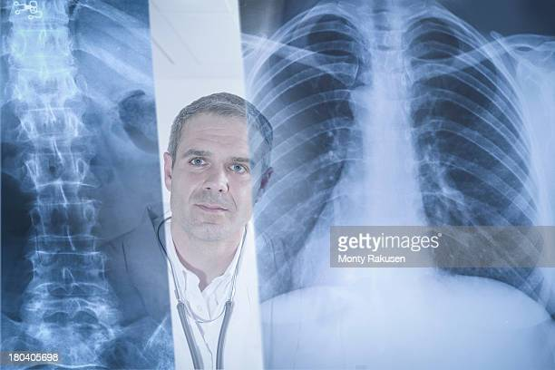 Doctor examining xray results displayed on screen