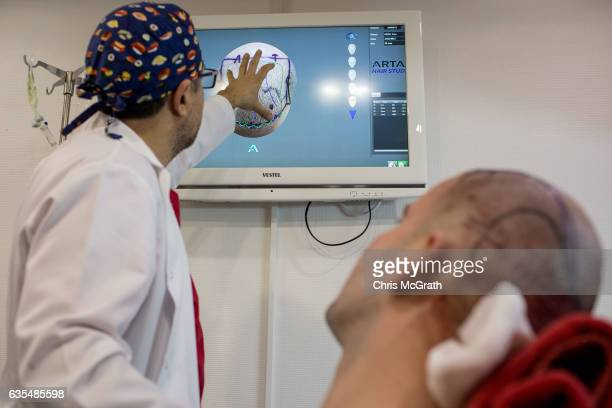 A doctor explains a hair transplant procedure to a patient at the luxury Esteworld Clinic on February 15 2017 in Istanbul Turkey Esteworld clinic is...