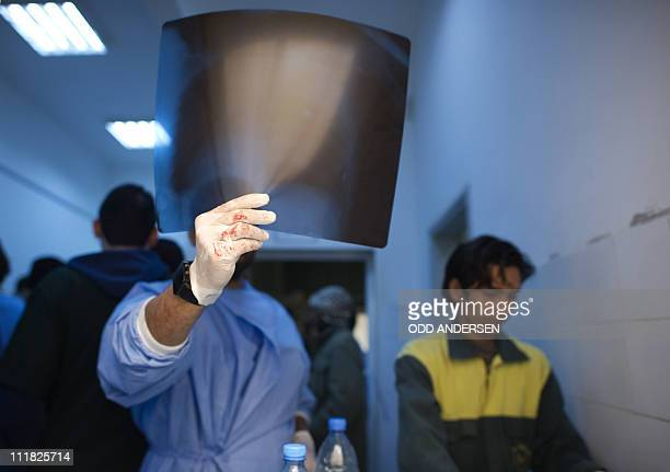 A doctor inspects the Xray of a wounded Libyan rebel fighter at a hospital in Ajdabiya on April 7 2011 Libyan insurgents and civilians stampeded out...
