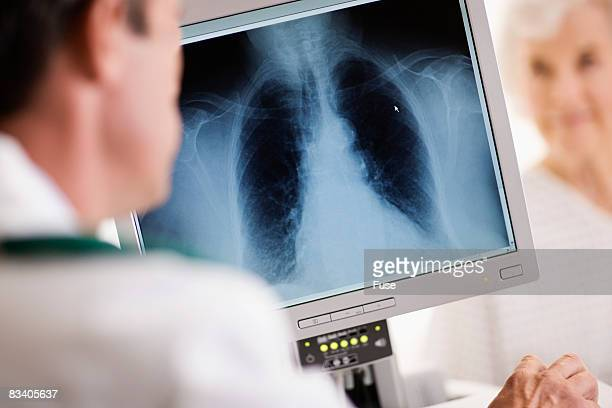 Doctor Looking at Patient's X-Ray