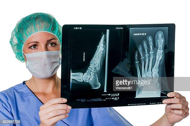 Doctor looking at x-ray of foot