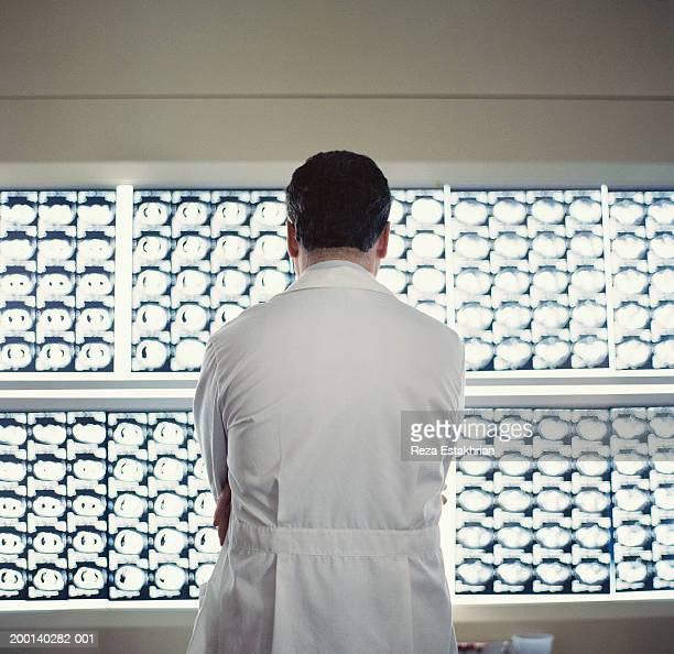 Doctor looking at x-rays, rear view