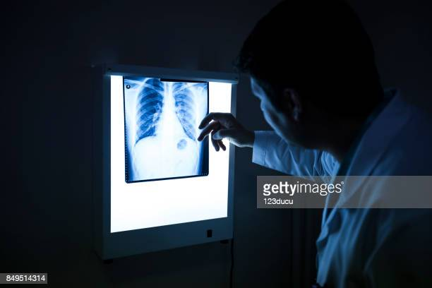 Doctor Looking X Ray