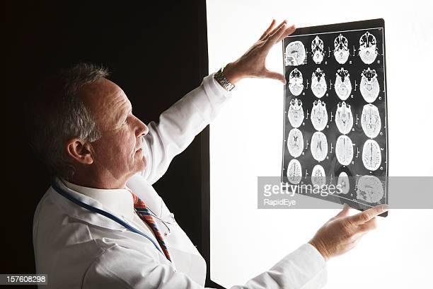 Médecin examine les images de scan du cerveau sur la visionneuse