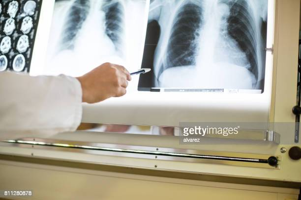 Doctor pointing at x-ray image of chest