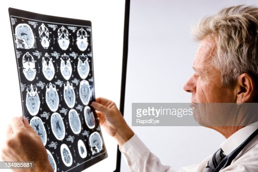 Doctor reading CAT scan