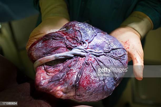 Médico mostrando placenta após o parto