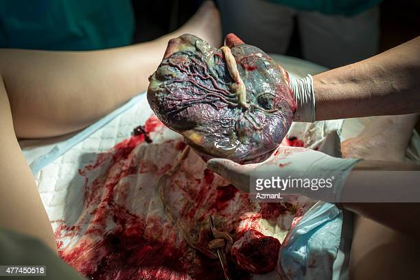 Doctor Showing Placenta