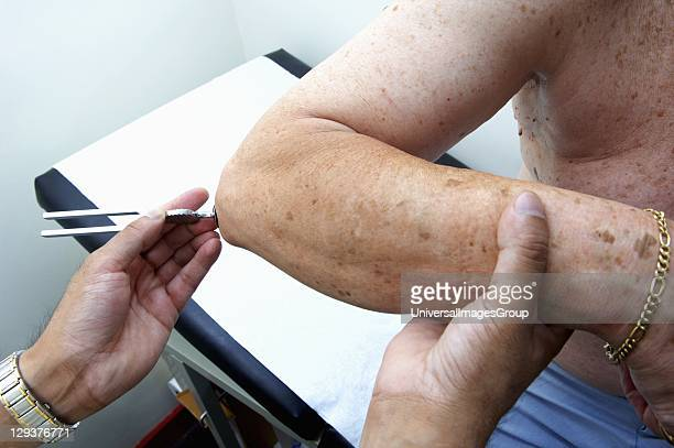 Doctor using 128 cycles/second tuning fork to test elderly patients sense of vibration