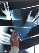 Doctor viewing x-rays of hand in hospital