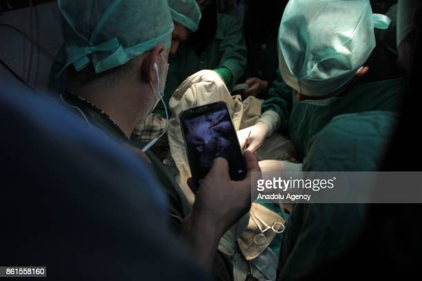 Doctors are seen during an operation for a day baby Mohammed at the hidden underground hospital in the Eastern Ghouta district of Damascus Syria on...