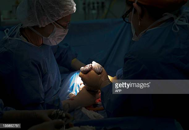 Doctors carry out a caesarean section in a maternity center in Caracas on December 15 2011 According to the World Health Organization Venezuela holds...