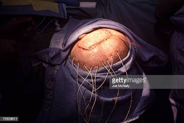 UNDATED Doctors complete a proceedure during which they implanted a diagnostic grid of electrodes in Chris Cotter's brain in 1995 in Baltimore...