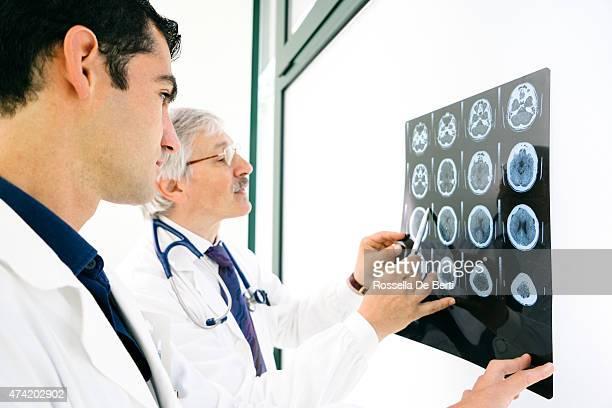 医師にご相談の上、MRI スキャンの脳