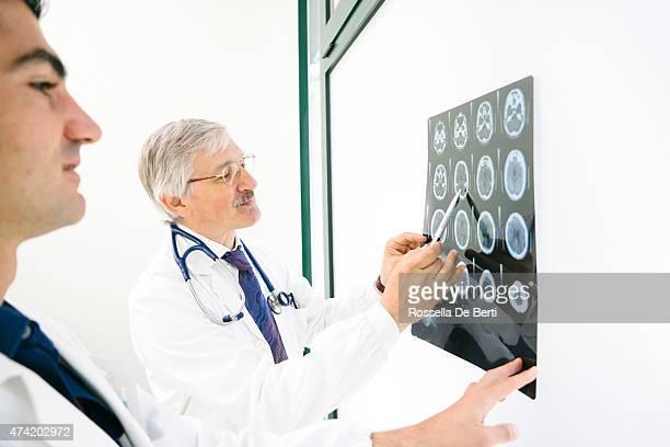 Los médicos consultar a una MRI del cerebro