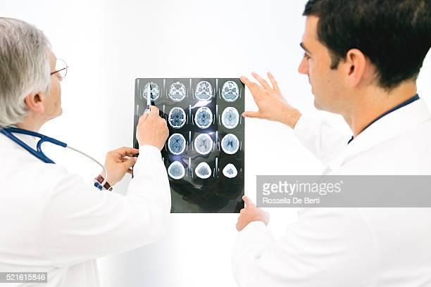 MÉDECINS consultation sur une Image à résonance magnétique du cerveau