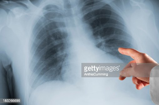 Doctors hand pointing at Xray on lightbox
