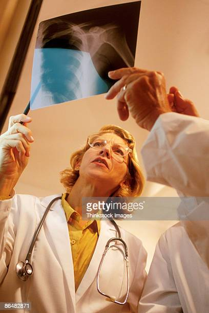 Doctors looking at x-ray